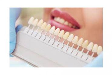 Dúvidas sobre o clareamento dental?